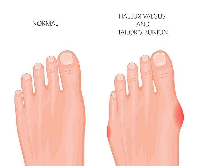 Here's What You Didn't Know About The Tailor's Bunion - Newslibre