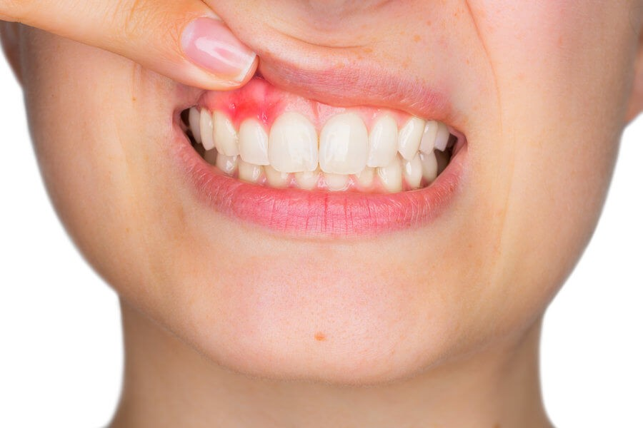 Are Dental Lasers Effective for Treating Gum Disease? - Newslibre